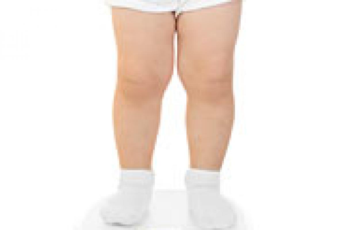 Βοήθεια! Η μικρούλα μου είναι παχύσαρκη!