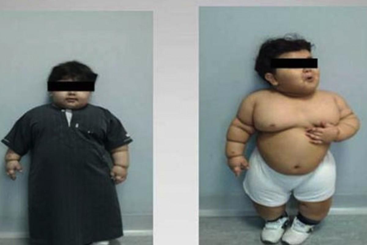 Παχύσαρκο νήπιο υποβάλλεται σε χειρουργική επέμβαση γαστρικής παράκαμψης