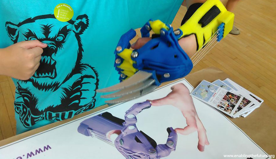 3d-printed-super-hero-prosthetic-limbs-enabling-the-future-18