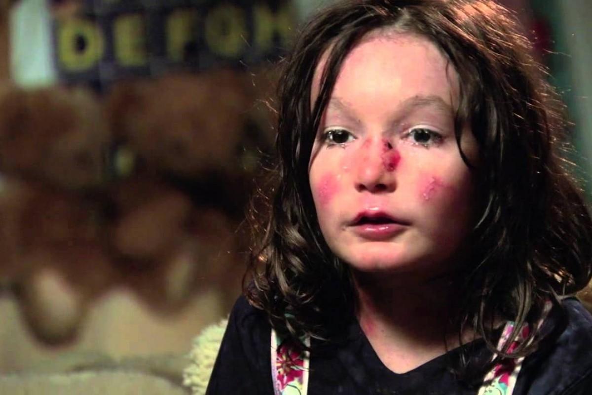 Η ιστορία της Sohana, ενός κοριτσιού με μία σπάνια δερματοπάθεια