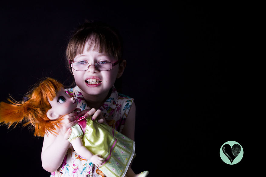 i-photograph-children-with-rare-diseases-to-encourage-people-to-look-beyond-their-condition-7__880