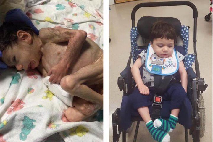 Δείτε πως η αγάπη των νέων του γονιών μεταμόρφωσε αυτό το αγόρι μέσα σε ένα χρόνο!
